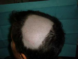 Patient with HLA-B27 positive ankylosing spondylitis who developed progressive alopecia areata after the start of anti-TNF therapy, extended to the middle of the scalp 15 days after the fourth infusion of infliximab.
