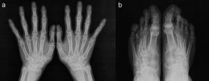 (a and b) Hand and feet X-rays show osteopenia, tubular epiphyseal widening and loss of joint space, without erosions.