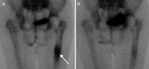 (a) Bone scan showing displacement of the prosthesis at the femoral shaft level (arrow). (b) Same patient after 6 months of treatment with strontium ranelate.