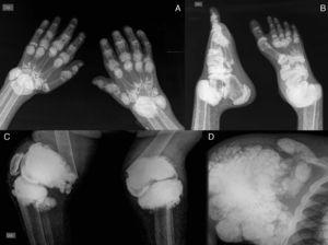 (A) X-ray of hands with periarticular calcinosis on interphalangeal, metacarpophalangeal and wrist joints, decreased bone density, resorption of the distal epiphysis of the radius and ulna. (B) X-ray showing periarticular calcinosis on interphalangeal and metatarsophalangeal tibiotalar joints, osteosclerosis of the phalanges and metatarsal tibiotalar joints dislocation and bone resorption of the distal epiphysis of the tibia and fibula. (C) X-ray of the knees with periarticular tumoral calcinosis, bilateral supracondylar fracture with medial deviation of the femoral shaft. (D) X-ray of shoulder with periarticular tumoral calcinosis, resorption of the humeral head and neck, clavicle bone resorption.