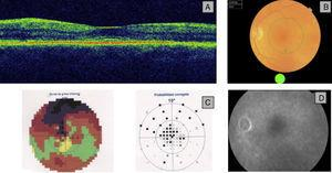 (A) OCT: loss of foveal depression and separation of the outer layers of the retina. (B) Fundus with very slight changes in electroretinography. (C) The visual field showed a dense central scotoma. (D) Fluorescein angiography was unchanged.