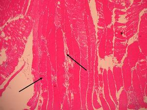 Muscle biopsy 100×. Increase in volume, discoloration and destruction of muscle fibers surrounded by an inflammatory infiltrate.