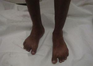 Patient with Noonan's syndrome, with bilateral tibial edema.