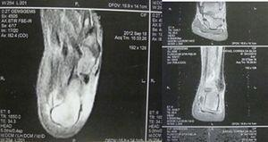 MRI of the ankle with edema in the posterior region of the calcaneus, thickening and increased density in the insertion of the left Achilles tendon, partial rupture associated to peritendinitis and retrocalcaneal bursitis.