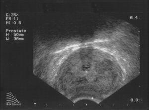 Transrectal ultrasound prostate image, with diffuse hypoechoic areas displayed.
