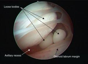Arthroscopic image identifying intra-articular synovial chondromatosis-related loose bodies.