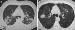 Computed tomography showing pulmonary nodules: (a) non-cavitated nodules, cavitated nodules and consolidation, (b) mosaic pattern, cavitated nodules and centrilobular micronodules on the periphery of the anterior segment of the left upper lobe.
