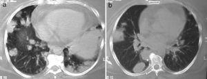 (a and b) Nodules and masses in the right lower lobe and consolidation on the periphery of the left lower lobe; histopathological analysis showed necrotizing granulomatous vasculitis and organizing pneumonia.