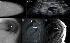 (A) Mammography BIRADS I. (B) Adenopathy with cortical thickening suspicious of metastasis. (C–E) A D7 vertebral fracture with a sclerotic pattern is seen in the sagittal CT and a hypointense signal on MR imaging T1.
