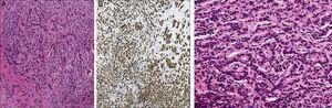 (A) Hematoxylin–eosin (4×); tumor cells with hyperchromatic nuclei are observed. (B) Immunohistochemical staining (4×) cells with expression of E-cadherin, surrounded by a desmoplastic stroma. (C) At higher magnification (20×), other areas of the cylinder forming gland precursors infiltrating the interstitium, which is fibrous and shows an inflammatory reaction, may be seen.