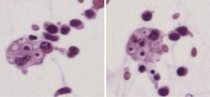 Ascites. Red cell within macrophages is observed.