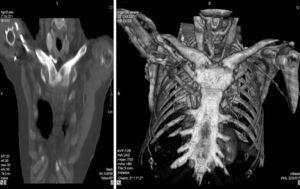 CT scan of the chest where clavicular hyperostosis and ankylosis of the sterno-clavicular joint are observed.