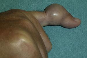 Clinical appearance of the fifth finger of the patient.