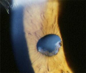 Extensive posterior iris synechiae and cataract formation secondary to persistent intraocular inflammation and topical steroid use.