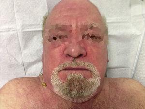 Facial and neckline erythema.