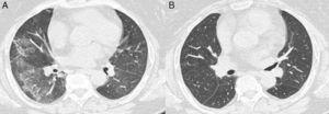 Thoracic CT scan. (A) Clinical onset. (B) Control.