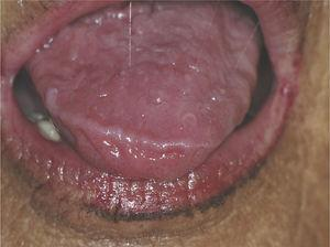 Seventy-year-old woman with primary Sjögren's syndrome with hyposalivation. Note the stringy aspect of the saliva.