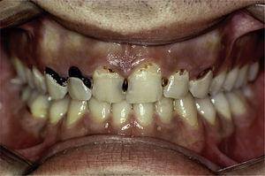 Primary Sjögren's syndrome patient with a great number of caries on atypical surfaces.