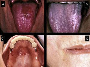 Types of oral candidiasis that can develop in primary Sjögren's syndrome patients: (A) Erythematous candidiasis. (B) Pseudomembranous candidiasis. (C) Candidiasis on areas covered by removable dentures. (D) Angular cheilitis.