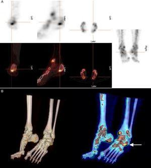 A. Axial, sagittal and coronal images obtained by bone SPECT/CT showing increased osteoblastic activity in left tibial malleolus, talus and talocalcaneal joint (cross). B. 3D reconstructions of the fusion images that enabled the precise localization of the point of entrapment (arrow).