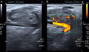 (A) Gray scale iso/hypoechoic image of a round, heterogeneous and moderately well-defined lesion. (B) Image with Doppler signal activated showing the vessel that feeds the metastatic lesion.