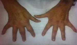 Synovitis in several proximal metacarpophalangeal and interphalangeal joints.