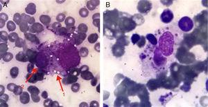 Enlarged view of the histiocyte with vacuolated cytoplasm phagocytosing a hematopoietic cell.