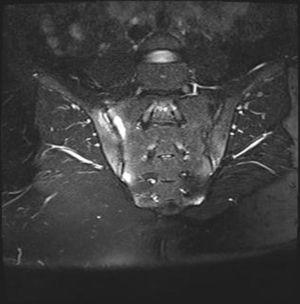 Sacroiliac joints MRI showed bilateral sacroiliitis.