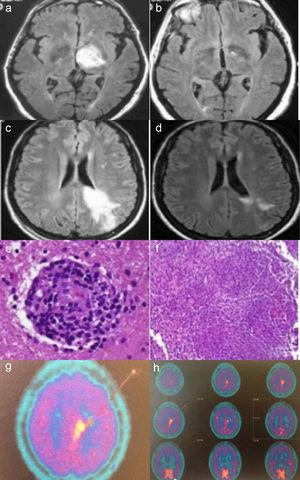 Case no. 1: Axial fluid-attenuated inversion recovery (FLAIR) magnetic resonance image (MRI) shows a hyperintense lesion in left thalamus (a). In an image acquired 2 months later, complete resolution of the lesion is observed (b). Case no. 2: Axial FLAIR MRI shows a hyperintense lesion in white matter of the left frontoparietal region, extending to the cortex and corpus callosum, in a gadolinium-enhanced image (c). MRI performed after 20 days of corticosteroid therapy shows a significant reduction in the hyperintense area (d). Histopathological findings in brain biopsy show a perivascular lymphocytic infiltrate with blood vessel involvement (hematoxylin-eosin) (e). Granulomatous inflammatory infiltrate (hematoxylin-eosin) (f). Brain 11C-methionine positron emission tomography (PET) images showing parasagittal deposition of 11C-methionine suggestive of possible lymphoma (g and h).