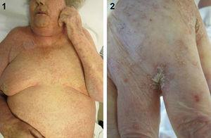 (1) Hyperkeratotic plaques and numerous linear burrow tracks distributed on the patient's trunk, predominantly in the facial area and on her breasts. (2) Hyperkeratotic plaques and linear burrows on the back of the hands, predominantly in the interdigital spaces.