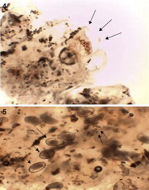 (4) Image from the histological study under direct vision (at 400×) showing a mite (arrows) and feces. (5) Histological study under direct vision (at 400×) showing eggs (arrows) and feces.