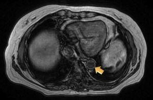 Magnetic resonance angiographic image of thoracic aorta and the upper portion of abdominal aorta showing a somewhat thickened aortic wall, reaching a thickness of approximately 1.7mm in prerenal aorta, with atheromatosis in thoracoabdominal aorta.