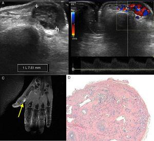(A) Ultrasound image in B mode showing a 7.5-mm lesion in the soft tissue of the proximal phalanx of the first digit of the left hand. (B) Spectral Doppler ultrasound showing a low-resistance arterial waveform. (C) Fat-saturation T2-weighted magnetic resonance image showing the hyperintensity of the lesion (arrow). (D) The pathological study using hematoxylin–eosin staining revealed numerous vascular spaces surrounded by an endothelium with no atypical features, lying on a stroma with hyalinized papilla.