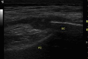 Ultrasound of right knee. Longitudinal view of the external parapatellar recess showing marked synovial proliferation of homogeneous aspect. FC, femoral cortex immediately adjacent to the lateral femoral condyle; SC, superficial cortex of the lateral patellar border.
