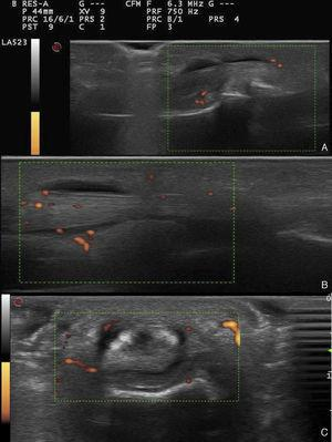 Ultrasound images of the 4th finger of the patient's right hand. (A) Long-axis view of middle-distal phalanges, with grade 1 power Doppler signal. (B) Long-axis view of proximal phalanx-metacarpus, with grade 2 power Doppler signal. (C) Cross-sectional view of proximal phalanx-metacarpus, with grade 2 power Doppler signal.