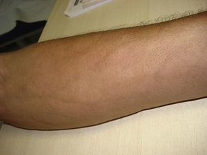 "The groove sign (furrows along the veins of the superficial plexus) and ""peau d'orange"" aspect are observed in the patient's left forearm."