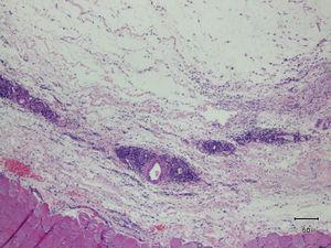 Thickening and edema of the muscle fascia, with presence of a diffuse, perivascular lymphocytic inflammatory infiltrate.