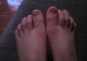 Phase of erythema in both feet.