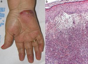 (a) A large pustule in an erythematous violaceous plaque on the palm of the patient's hand. (b) Hematoxylin and eosin (10×). Dense dermic neutrophilic infiltrate with marked edema, without leukocytoclastic vasculitis.
