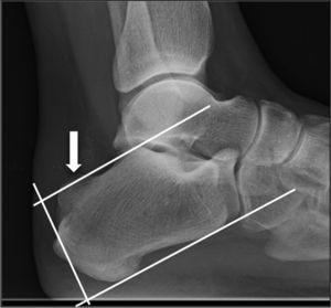 Lateral radiograph of ankle. The arrow signals the posterosuperior exostosis of the calcaneus, which exceeds the upper line in the parallel pitch line method and, thus, the cause is considered to be Haglund's deformity.