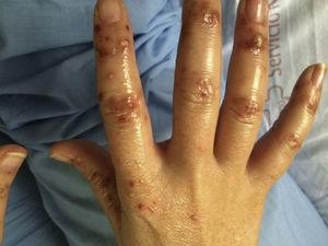 Diffuse pustular lesions on the dorsum of the hands.
