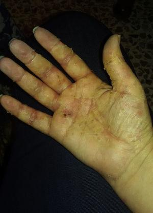 Resolution of pustular lesions on the palms of the hands (scaling phase).
