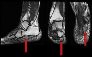 A T1 nuclear magnetic resonance sequence showing fat replacement of the abductor muscle of the fifth toe, and several dilated or varicose veins on the inner aspect of the foot, along the course of the inferior calcaneal nerve, suggesting Baxter entrapment neuropathy.