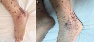 Vesiculobullous form of cutaneous leukocytoclastic vasculitis. (A) Prior to antibiotic therapy. (B) After antibiotic therapy.