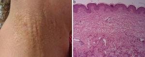 """(a) Yellowish papular lesions looking like """"goosebumps"""" in right neck region, surrounded by normal skin. (b) Hematoxylin-eosin staining: sample of calcified elastic fibers in reticular dermis."""