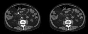 Abdominal computed tomography: nonspecific lymph nodes measuring less than 9mm located on the mesenteric axis.