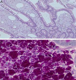 """Small bowel (duodenal) biopsy. (A) Intestinal villi with expansion of the lamina propria by numerous pink-colored foamy macrophages (hematoxylin & eosin 20×). Occasional """"empty spaces"""" correspond to extracellular lipid deposits. (B) Macrophages loaded with periodic acid Schiff (PAS)-diastase-positive intracytoplasmic granules (20–40×)."""