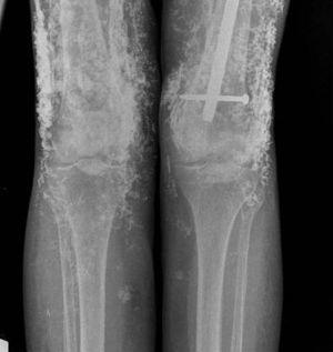 Calcinosis in thighs with intramuscular calcification proximal to the distal insertion of the vastus medialis. Intramedullary nail secondary to femoral fracture.