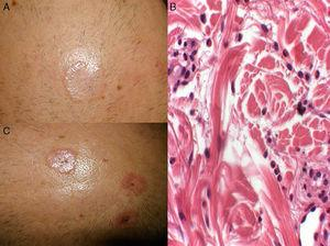 (A and C) Circular, skin-colored and erythematous plaques measuring 2–4cm, with a more infiltrated border and small scabs on the surface. (B) Histiocytes interspersed with bundles of degenerated collagen accompanied by an inflammatory infiltrate with abundant eosinophils (hematoxylin-eosin, 20×).