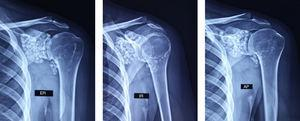 Radiographs of the shoulder in true anteroposterior (AP), external rotation (ER) and internal rotation (IR) positions revealed the presence of multiple calcified bodies of the same size, distributed throughout the entire glenohumeral joint, as well as the subscapularis recess and the bicipital groove.